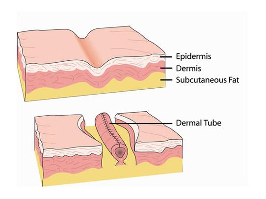 Dermal Tube